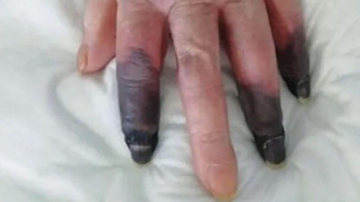 A una mujer con COVID le amputan tres dedos después de sufrir gangrena
